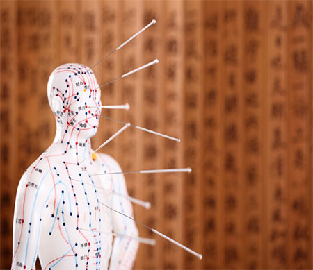 Акупунктура: один из методов альтернативной медицины